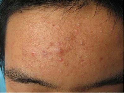 预防青春痘的日常护理