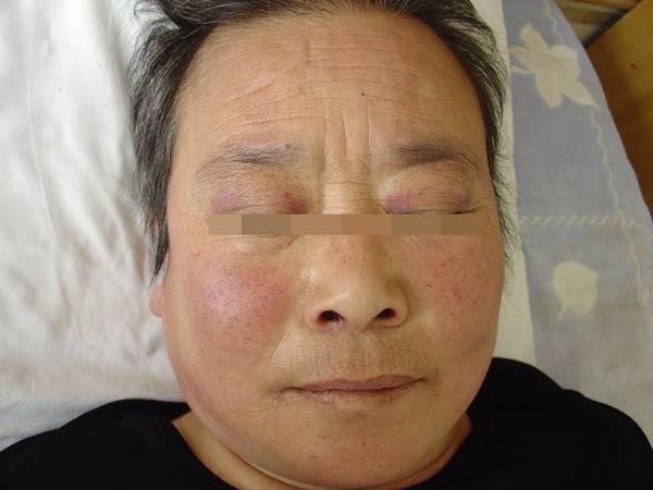 京城皮肤病医院:让皮炎湿疹不再是顽疾