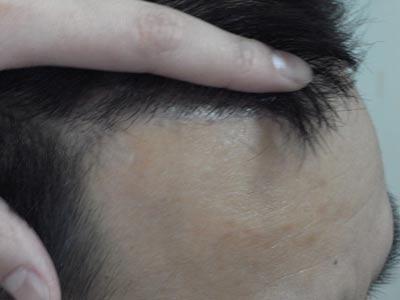 脱发的症状你真的了解吗?