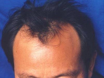 北京治疗脱发的专业医院哪家好