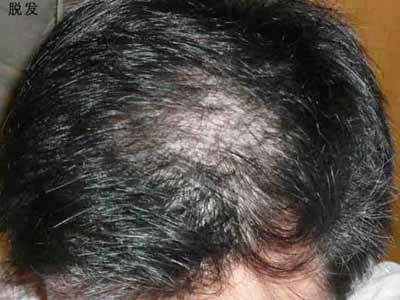 揭秘脱发的秘密 助你轻松摆脱脱发困扰