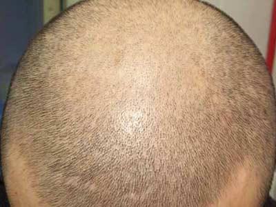 脱发危害健康,及时治疗是关键